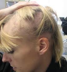 Movehs - Alopecia Androgenetica: